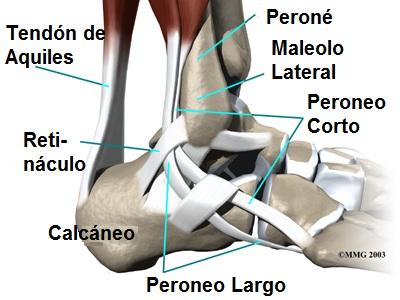 Tendinopatia peroneos. Aprende sobre tu lesión en Zaragoza