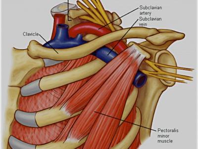 http://institutoneurocirugia.es/wp-content/uploads/Influencia-del-tend%C3%B3n-del-pectoral-menor-en-la-compresi%C3%B3n-del-paquete-v%C3%A1sculo-nervioso.jpg