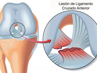 lesion de lca-1