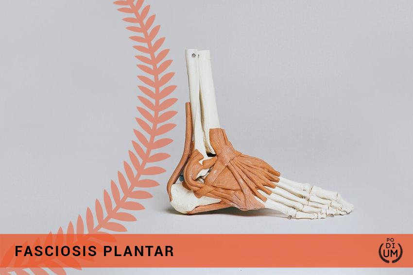 Fasciosis Plantar